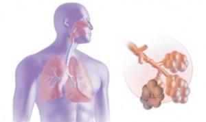 Заболевание дыхательных путей